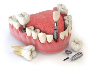 implantes dentales en silao