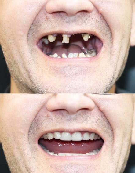 antes-y-despues-implantes-dentales