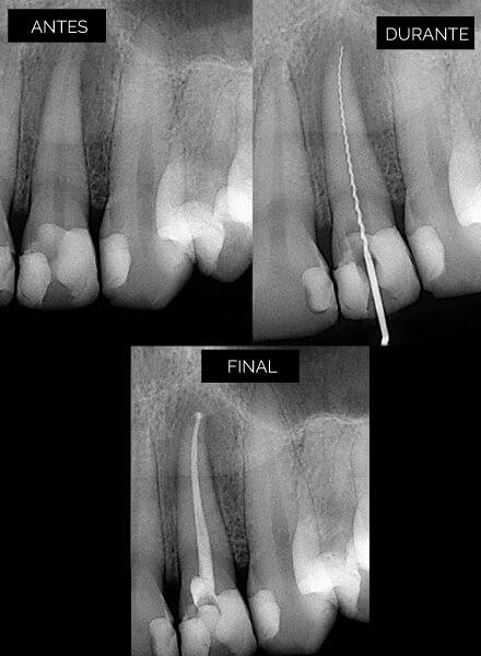 endodoncia-3