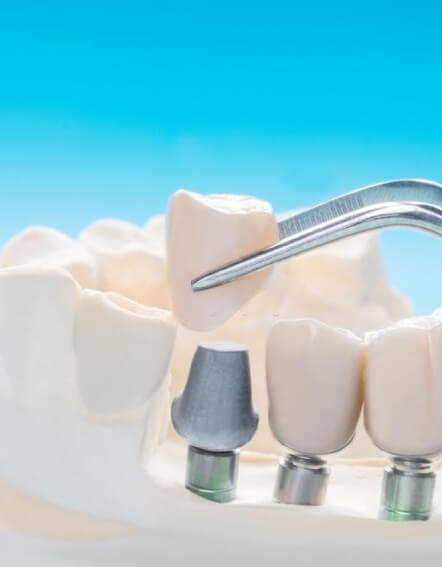 implante-dental-3