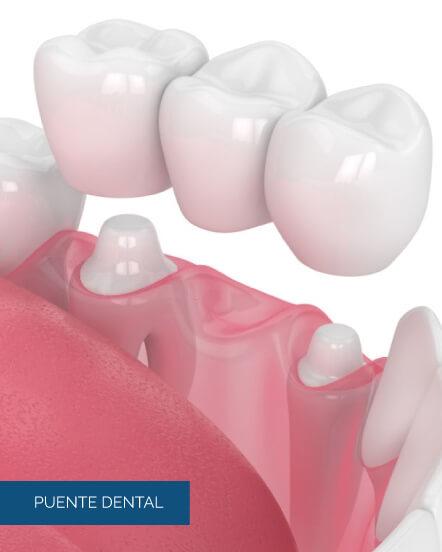 puente-dental
